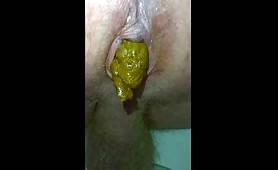 Male dump